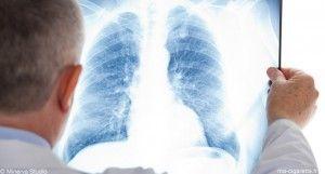 Les asthmatiques fument globalement autant que les non-asthmatiques. L'e-cigarette peut-elle s'adresser à ce type de fumeurs ?