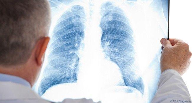 examen-radio-poumons